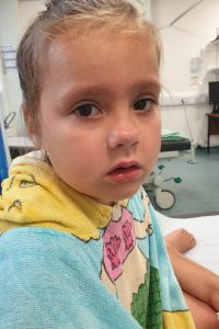 sad little girl wearing a towel in minor injuries waiting to get her foot looked at